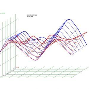 Pic.  4. Spectral-entropic analysis. Bronchiectatic disease (D=0,103)