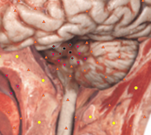 Pic. 3. Computed NLS-graphy. Cerebellar infarction. There is a hyperchromogenic area in a vermis (6 points at Fleindler's scale).