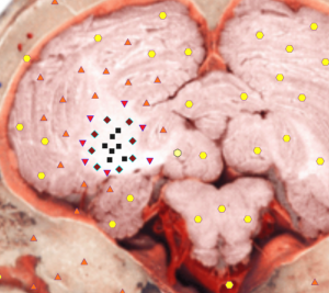 Pic. 4. Computed NLS-graphy. Cerebellar infarction. There is a hyperchromogenic area with relatively distinct borders in a right hemisphere of cerebellum.