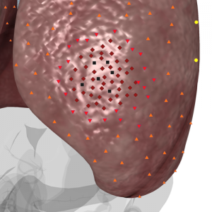 Pic. 2. 3D NLS-graphy of lung. Acute purulent abscess intracavitary with metastases. Seminoma in form of oval chromogenic formations of constant shape.